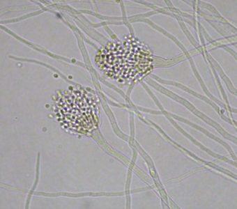 アスペルギルス・レストリクタス(アスペルギルス(Aspergilleus)属)の拡大写真