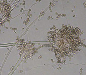 コウジカビ(アスペルギルス(Alspergillus)属)の拡大写真
